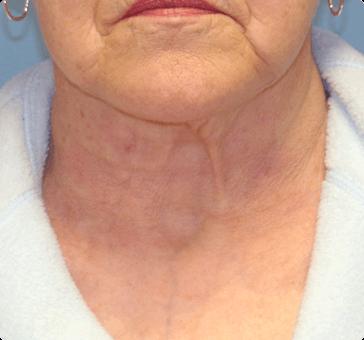 Facial Rejuvenation Clifton Park, NY - Celine Aesthetic Medicine